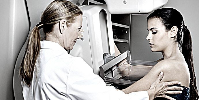Cancer du sein : le piège du dépistage