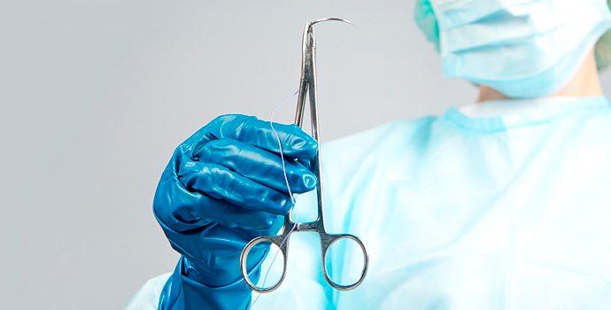 Le chirurgien oublie la pince dans le ventre