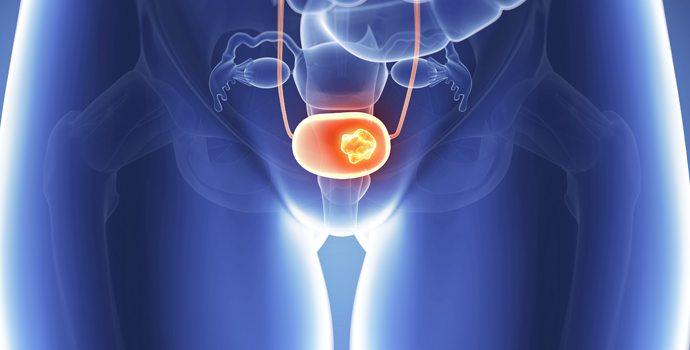 Connaissez-vous les signes avant-coureurs du cancer de la vessie?