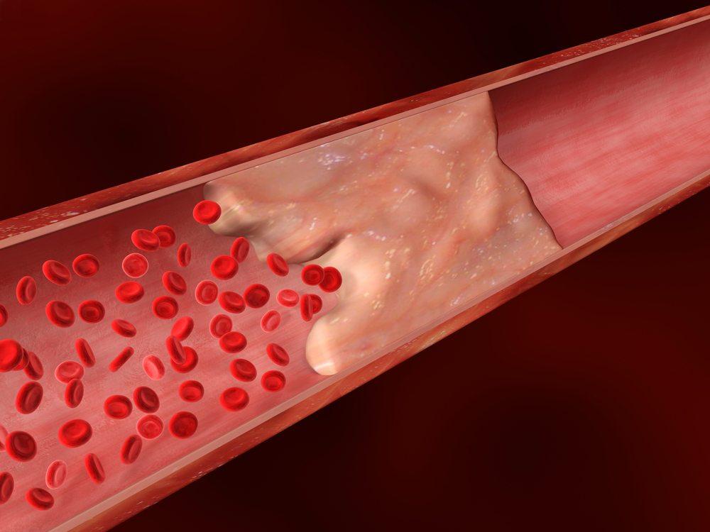 Ne laissez pas vos artères se calcifier