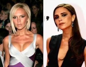 Victoria Beckham avant le retrait de ses implants mammaires et après