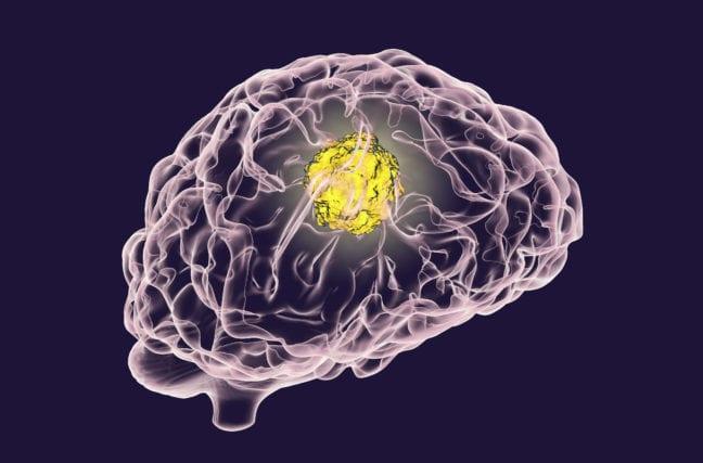 La tumeur inopérable au cerveau disparaît !