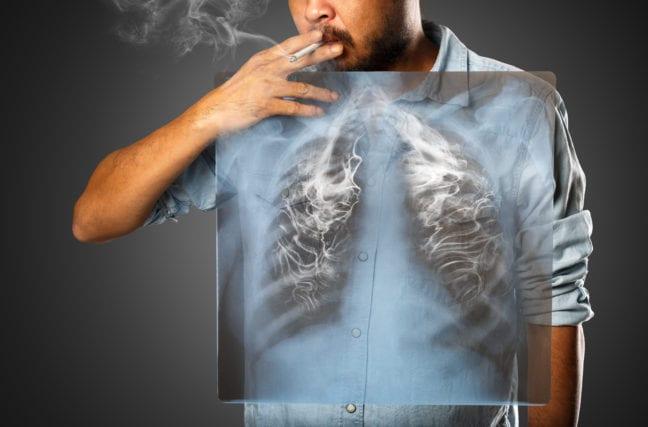 Avez-vous déjà vu les poumons d'un fumeur?